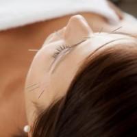 spændingshovedpine kan behandles med akupunktur